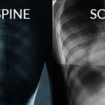 A Seismic Shift: Calcium & Vitamin D Can Help Stop Adolescent Scoliosis